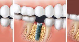 Implantate Zahnarzt Interlaken